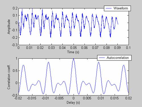 Spectral analysis time series matlab : Bang and olufsen bmw