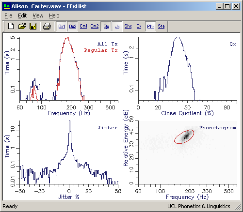 Windows Tool for Fundamental Frequency Analysis